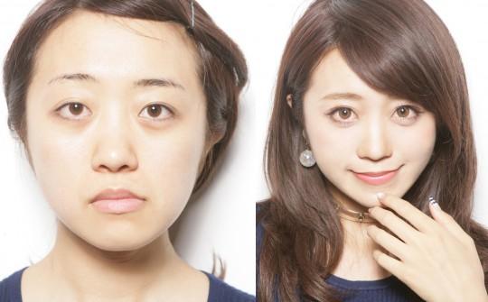 左右で違う二重を上手に平行二重にする 中島絢乃さん(25才)