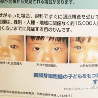 子供の目のガン早期発見にスマホが有効!?フラッシュして目が白…