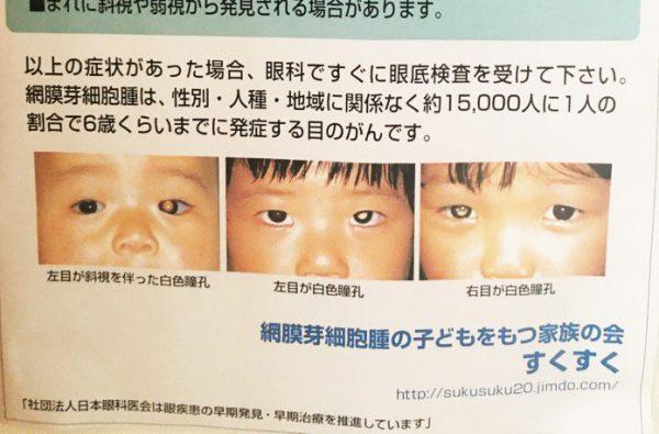 フラッシュたいた写真で子供の目が白く写ったらすぐ病院へ!