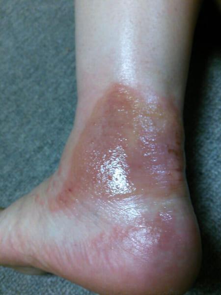 湿布薬で皮膚が大惨事に!安易な薬の使用の危険性と必読の「くすりの説明」